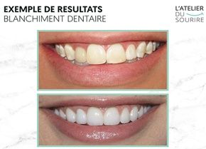 Kit blanchiment dentaire professionnel, avis et prix